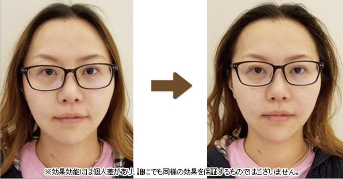 施術前後の比較写真3。効果効能には個人差があり、誰にでも同様の効果を保証するものではございません。