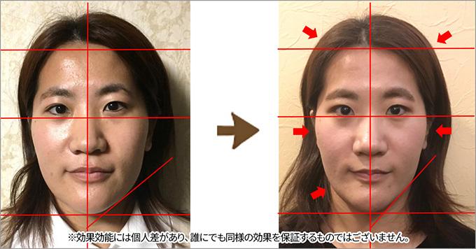 施術前後の比較写真1。効果効能には個人差があり、誰にでも同様の効果を保証するものではございません。